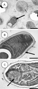 Parasite140027-fig5_Dictyocoela_diporeiae_Winters_&_Faisal,_2014_transmission_electron_micrographs